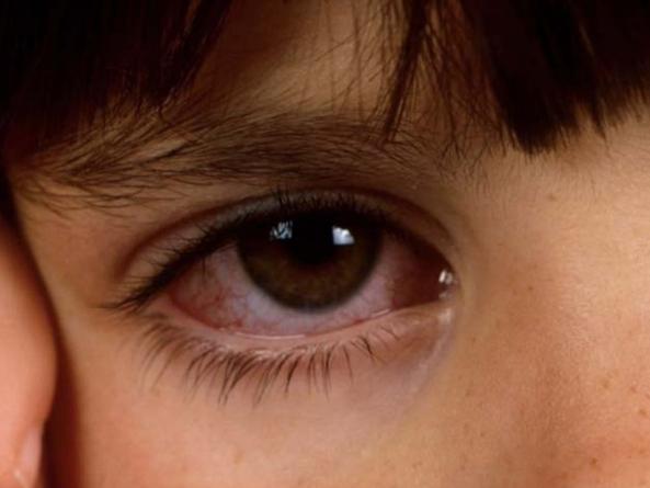 Лечение аденовирусного конъюнктивита у взрослых и детей