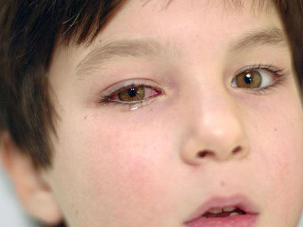 Как лечить насморк при температуре у ребенка
