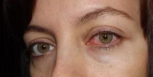 Лечение гнойного конъюнктивита у взрослых и детей