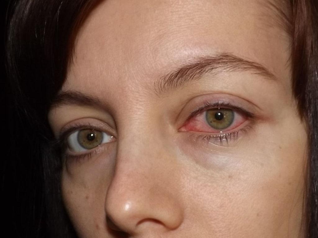 Гноится глаз у взрослого чем лечить в домашних условиях